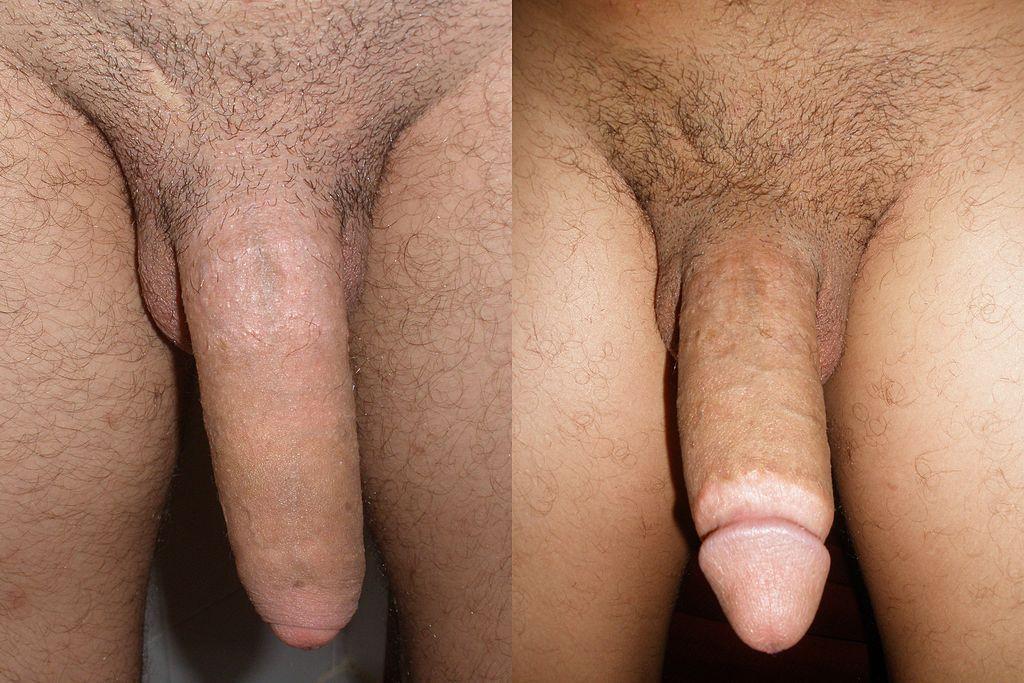 Adult circumcision pictures