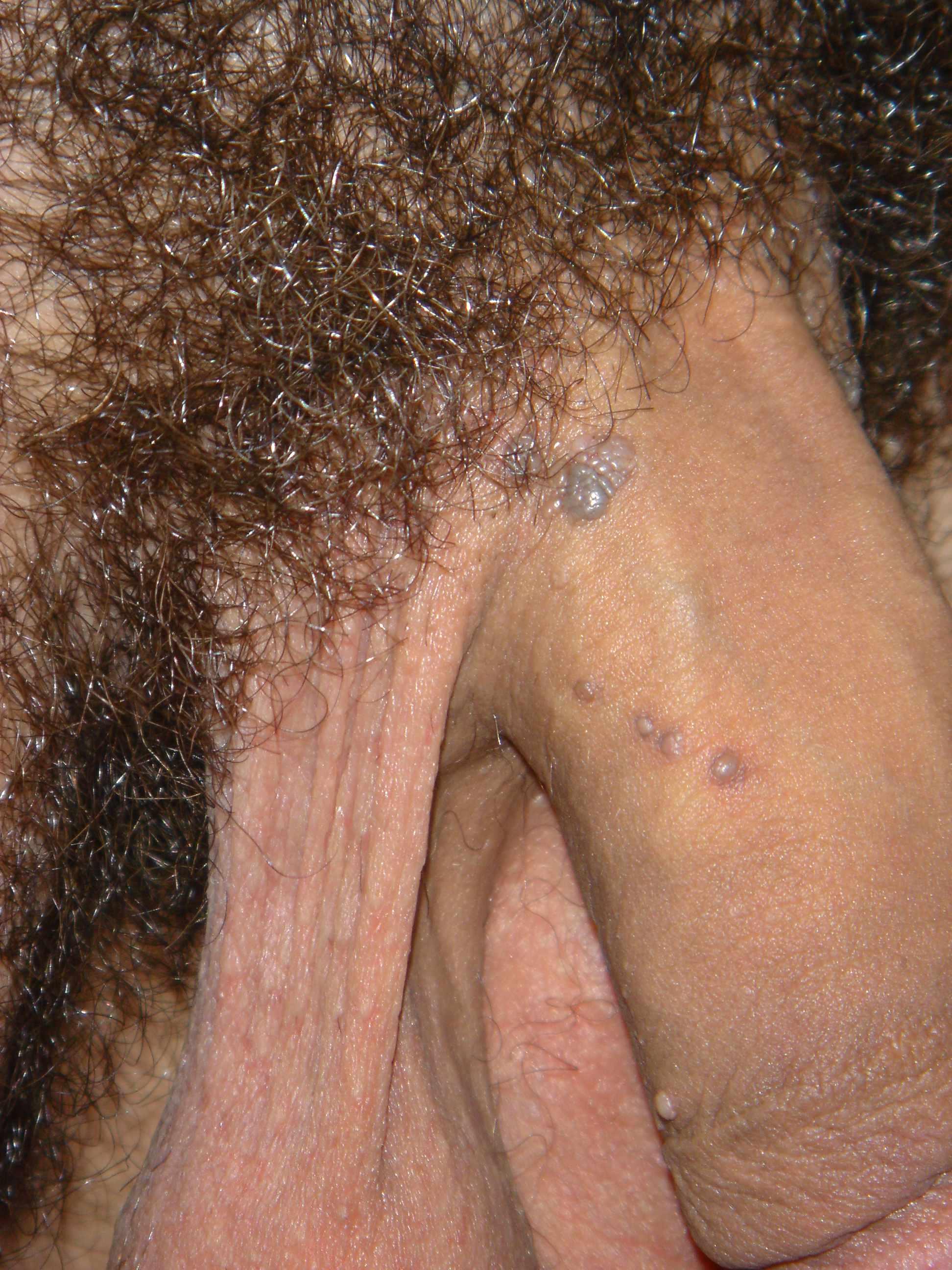 best of Due ot masturbation Genital warts