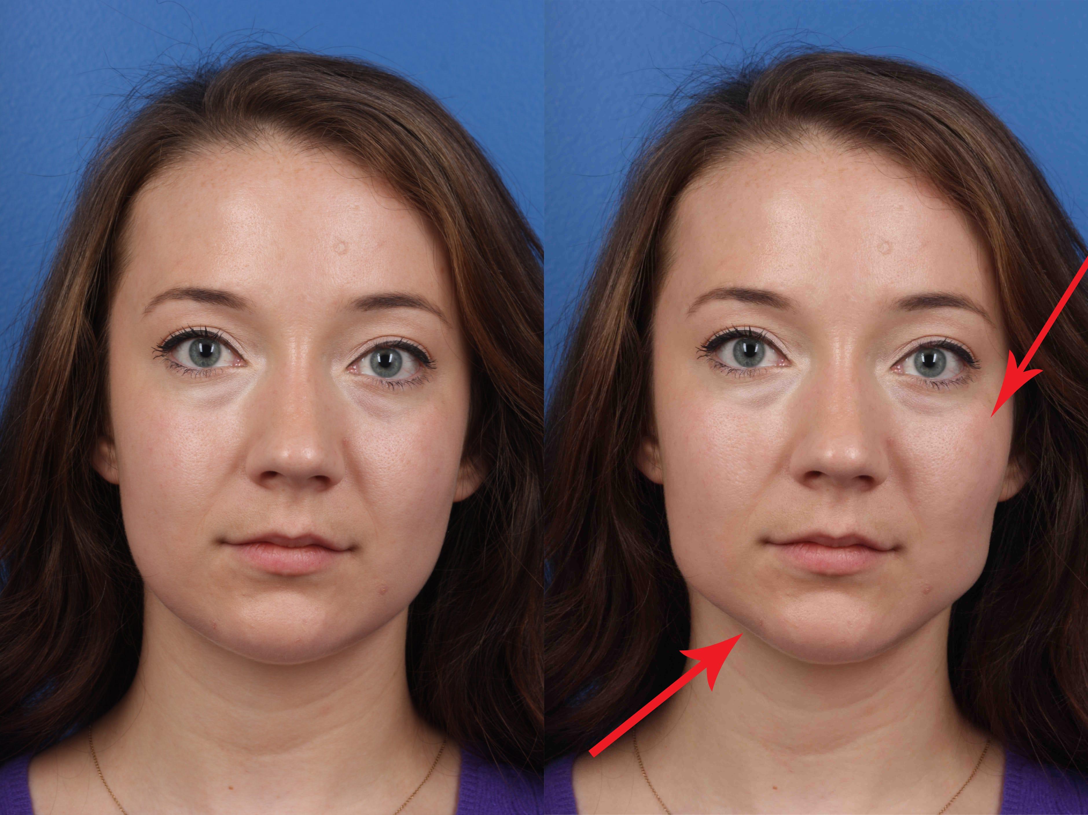 Tiger's E. reccomend Epichlorohydrin limits in facial tissue + prop 65