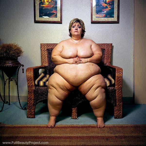 Grotesquely obese woman in bikini picture