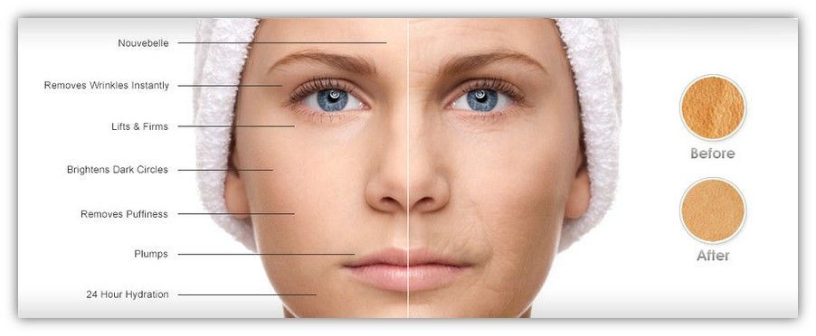 best of Puffiness Reducing facial