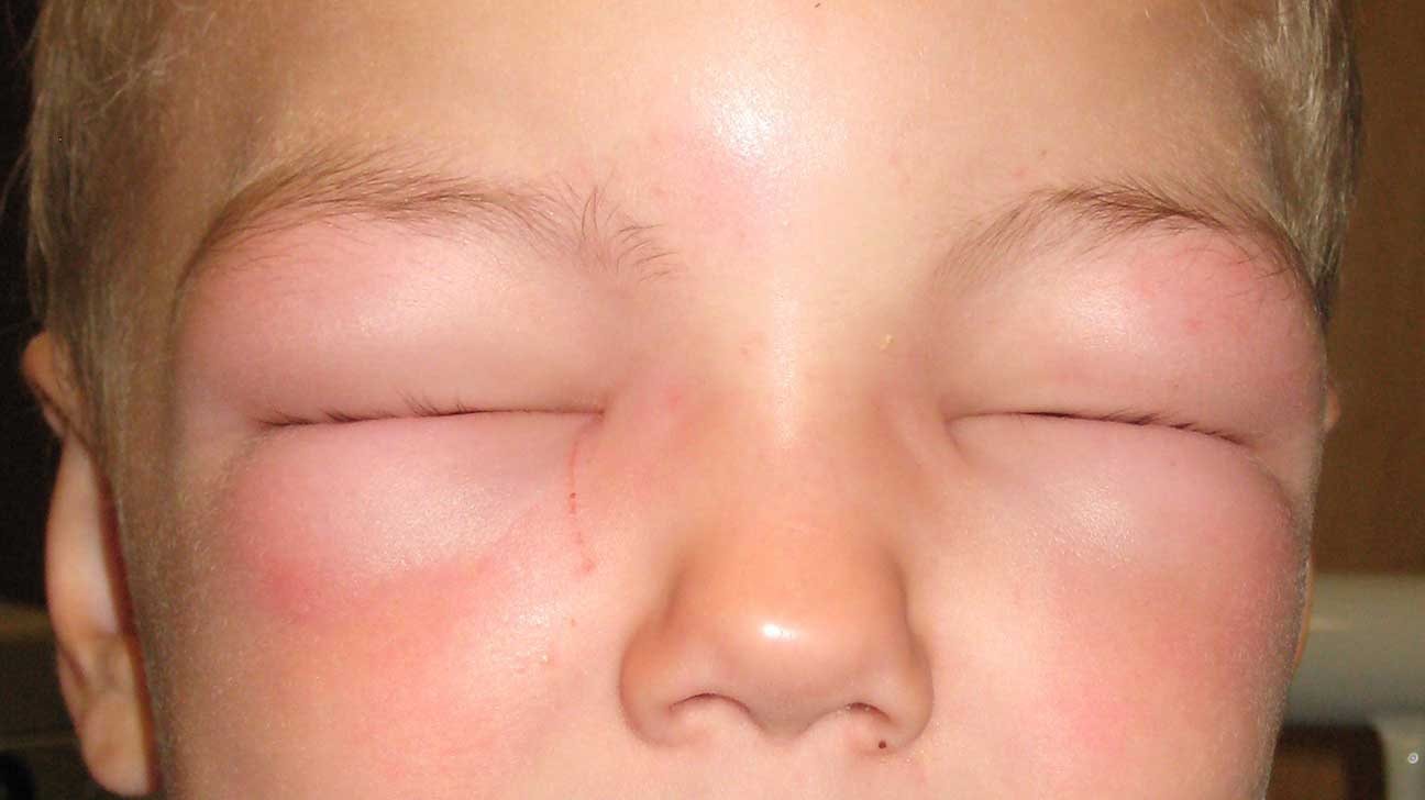 Reno reccomend Reducing facial puffiness
