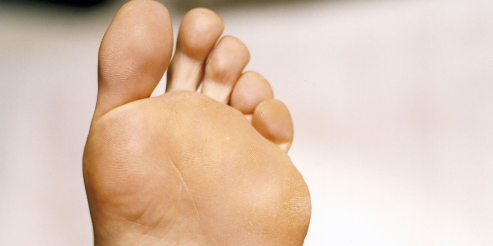 Goldfinger reccomend foot bottom sole pimple Why